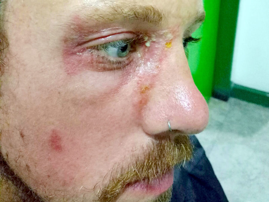 travel medical insurance emergency - Brian had a nasty skin reaction around his eye after simply coming into contact with a Rove Beetle in Bali